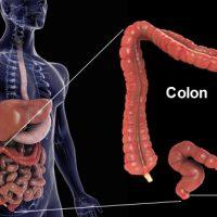 Crijeva#1 program 5-dnevnog čišćenja crijeva i liječenja opstipacije